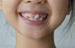 兒童牙齒不齊 的圖像結果