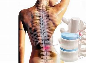 Лекарства для лечения артритов и артрозов