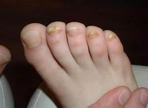 Кожный грибок на ногах как лечить