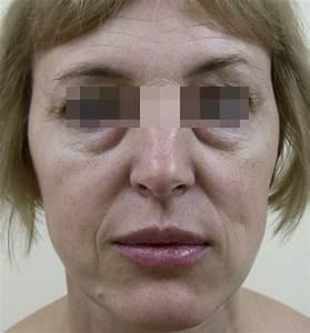 Как избавиться от мимической морщины около рта